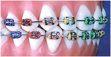 Aparat orthodontic fix metalic (ligaturare cu module elastice colorate/neutrale după preferinţe)