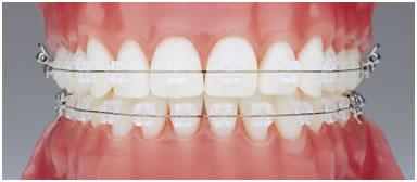 Aparat orthodontic fix fizionomic (ceramic)