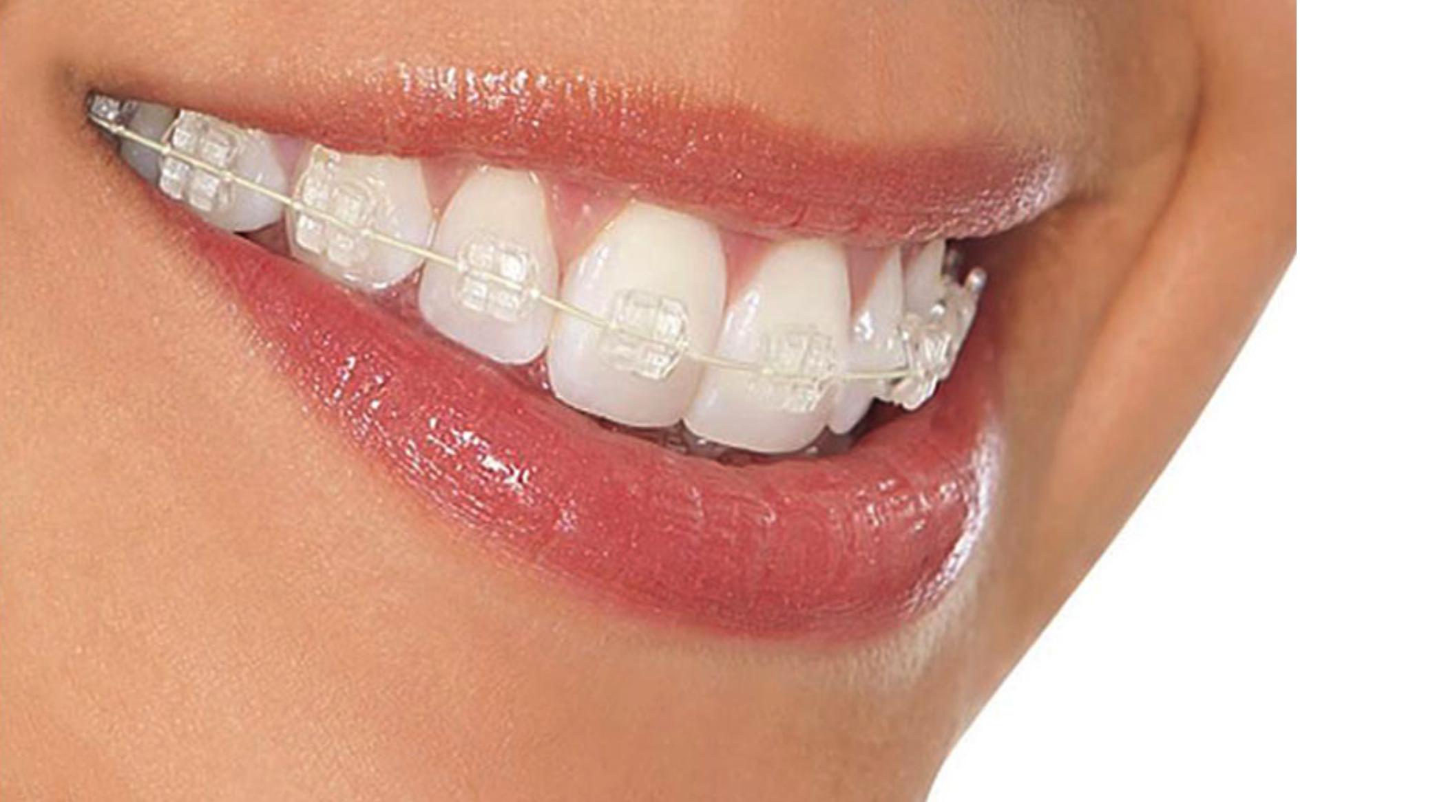 Aparat dentar fix Safir