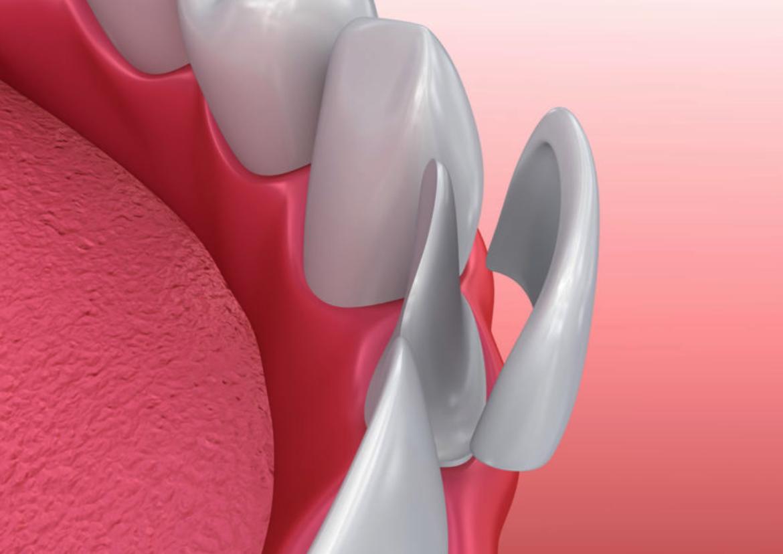fațete dentare de tip compozit vs. fațete dentare ceramice